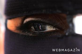 Oči prezradia o zdraví veľa. Pozrite sa, čo z nich možno vyčítať