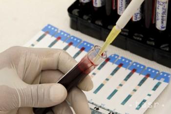 Slovensko pre vírus Zika sprísnilo podmienky na darovanie krvi