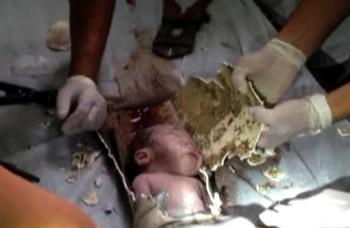 Highlighty týždňa: Dieťa v potrubí, pätorčatá v Česku a Jolie bez pŕs