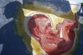 Antikoncepciu berie na Slovensku čoraz menej žien