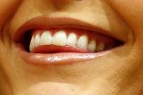 Parodontitídu ľudia podceňujú, hoci ich to môže stáť zuby