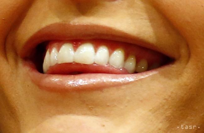 ODBORNÍCI: Zubný kaz či zápal ďasien trápi 90 percent dospelých