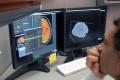 V PET centre Biont vyšetria nádor mozgu šetrnejším rádiofarmakom